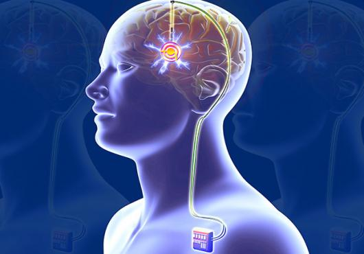Deep Brain Stimulation: A Futuristic Treatment Model with a Lot of Potential
