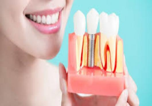 Dental Implants- Promise of Hassle-free, Everlasting Teeth for Psychosocial Wellbeing