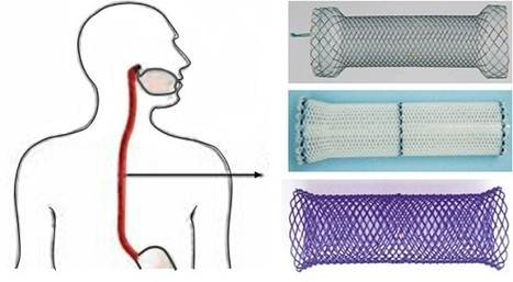 Polymeric biodegradable stent