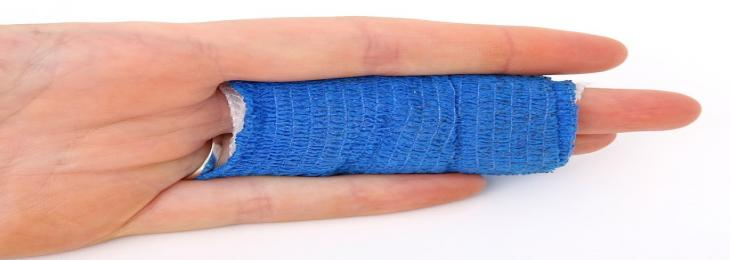 Burn Wound Can Be Healed By Light Therapy