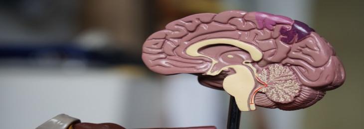 A Brain Implant Treats Severe Depression