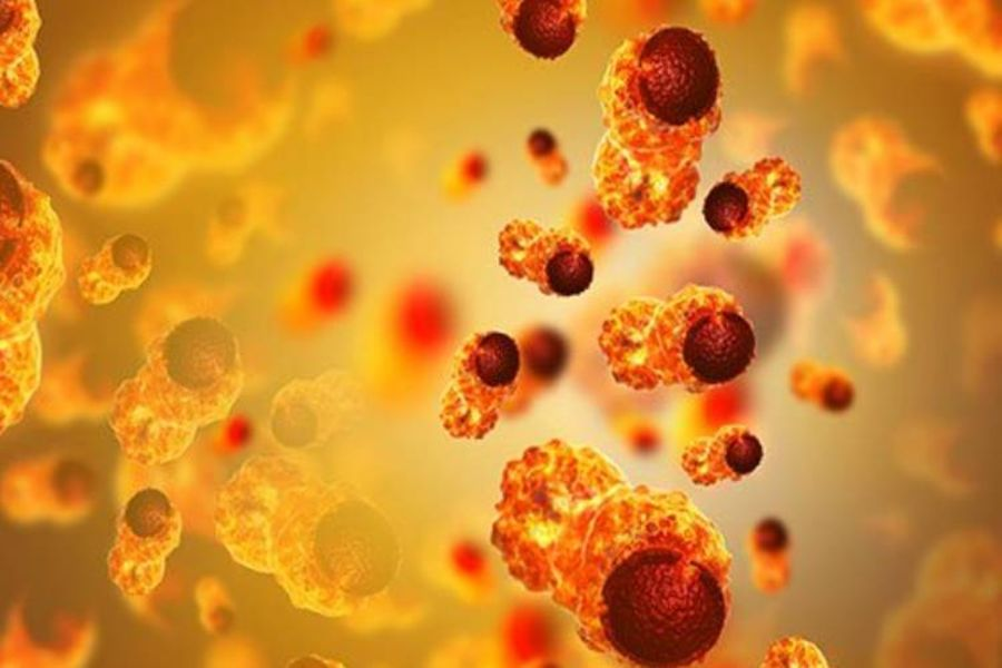 Fatty Acid May Kill Cancer Cells, Study Suggests